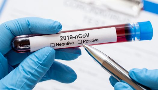 """UTAD lidera projeto de criação de teste """"rápido"""" para detetar infeção pela COVID-19"""